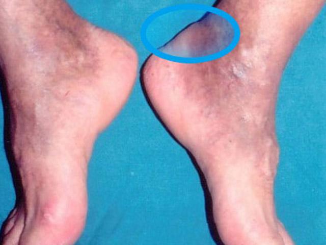 Check up online per il mal di schiena check up online per il mal di schiena check up online per - Dolore alle gambe a letto ...
